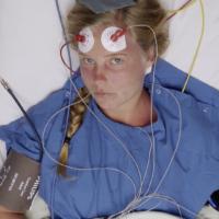 elektroconvulsietherapie