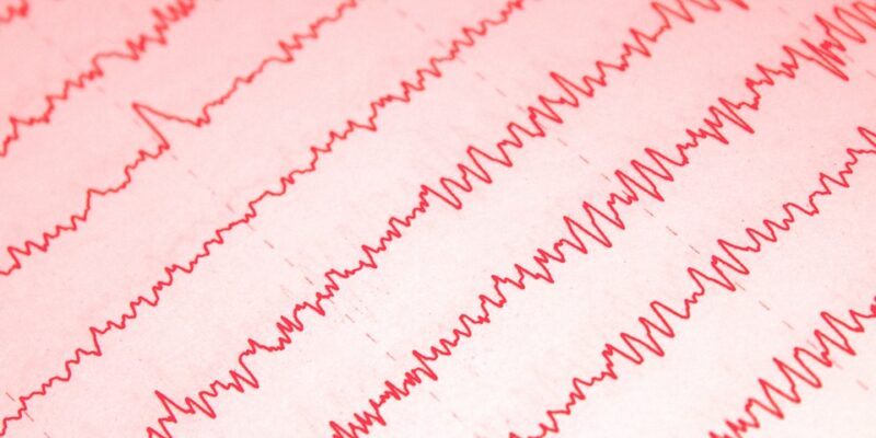 EEG, TMS, OCD, hersenactiviteit